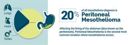Peritoneal Mesothelioma | Diagnosis, Treatment and Life